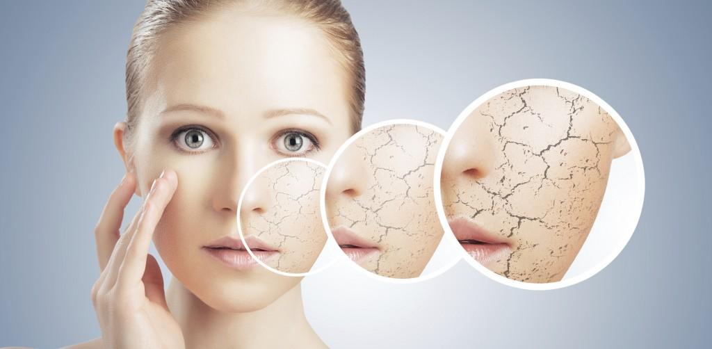 درمان خشکی پوست با ماسک های گیاهی