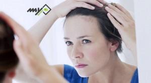 تقویت موهای کم پشت