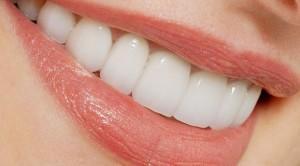 سفید کردن دندان ها به روشی آسان - سفید کردن دندان ها