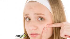 درمان سریع جوش صورت